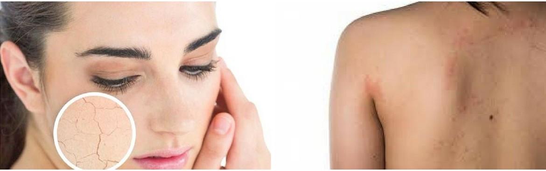 Soluciones para la piel atópica con productos naturales, Gamarde